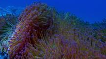 Giant Anemone