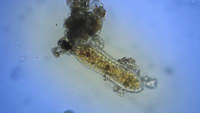 Single cell ciliat (Paramecium caudatum) in microscope