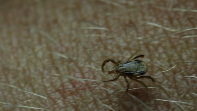 Paralysis ticks, also called dog ticks, shell-back ticks or scrub ticks are a small insect parasite. Ticks are small arachnids in the order Parasitiformes also know as Ectoparasites. Footage shows tick crawling on leg.